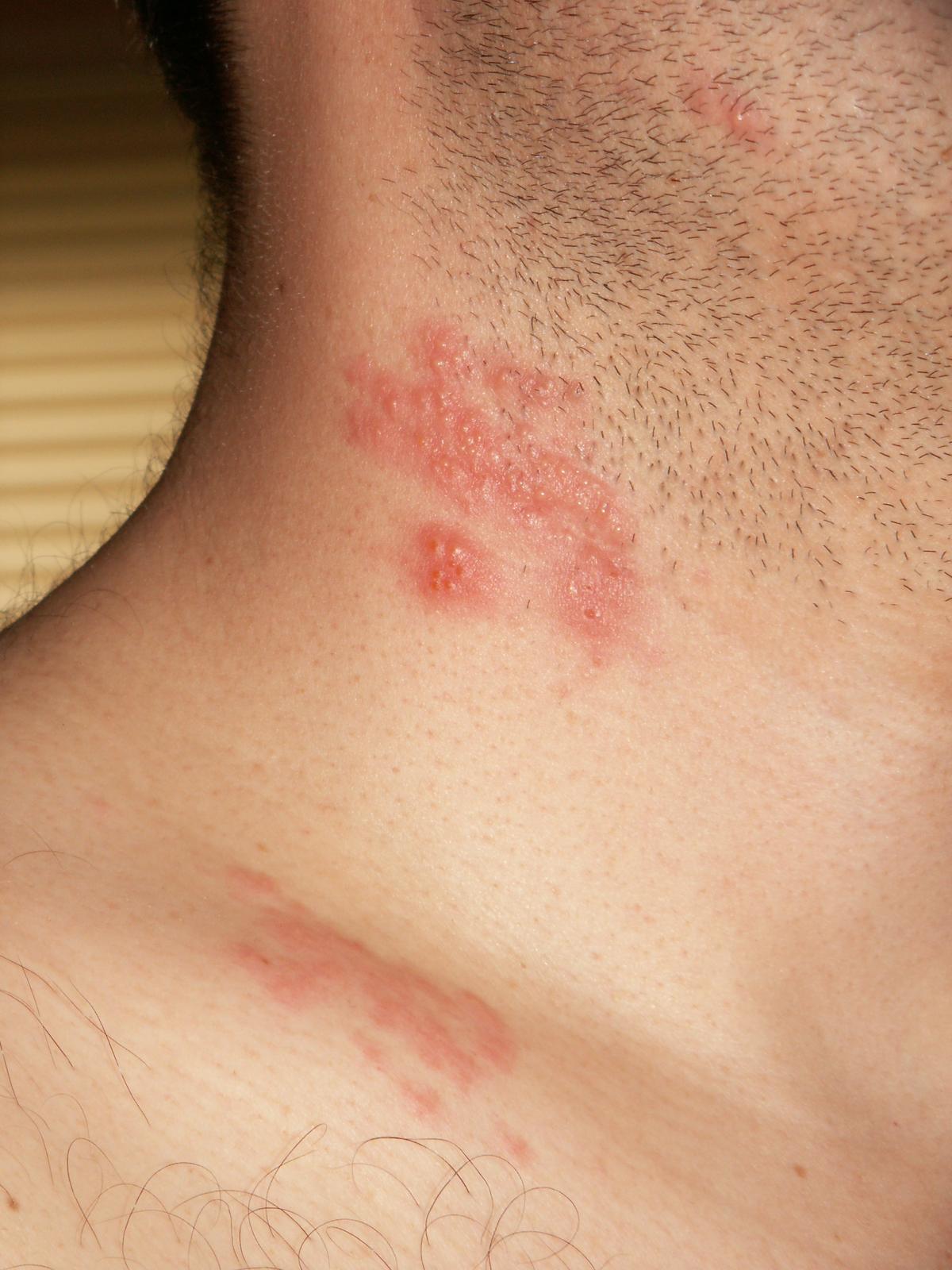 Опоясывающий лишай: фото, симптомы, лечение