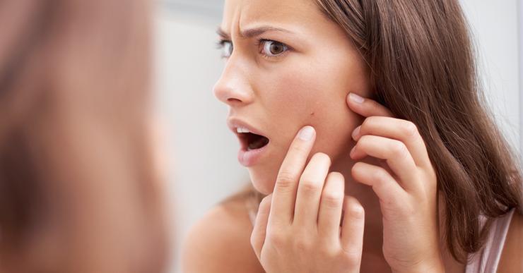 Лечение акне с помощью пилинга. можно ли делать процедуру от прыщей и какую лучше выбрать?