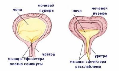 Слабая струя при мочеиспускании у мужчин: причины и лечение