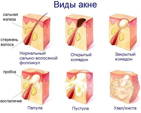 Гомеопатия и гомеопатическое средства от прыщей лечение