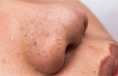 Акне (угри, прыщи) - причины, диагностика и лечение