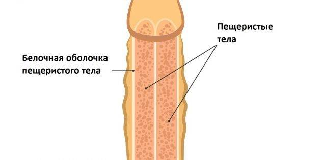 Гематома полового члена