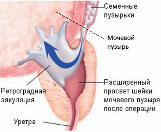 В каких случаях проводится операция на аденоме простаты