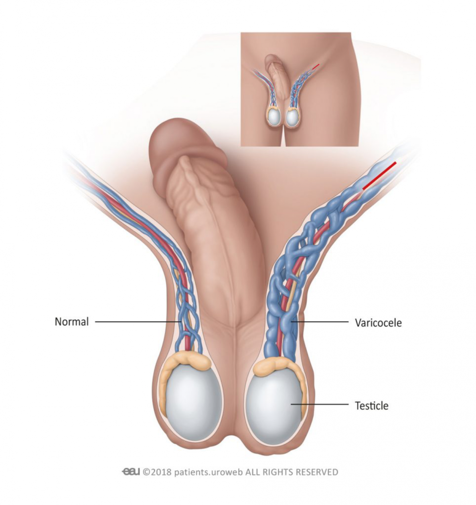 Варикоцеле – деликатная проблема мужчин. симптомы проявления и методы лечения. чем это опасно?