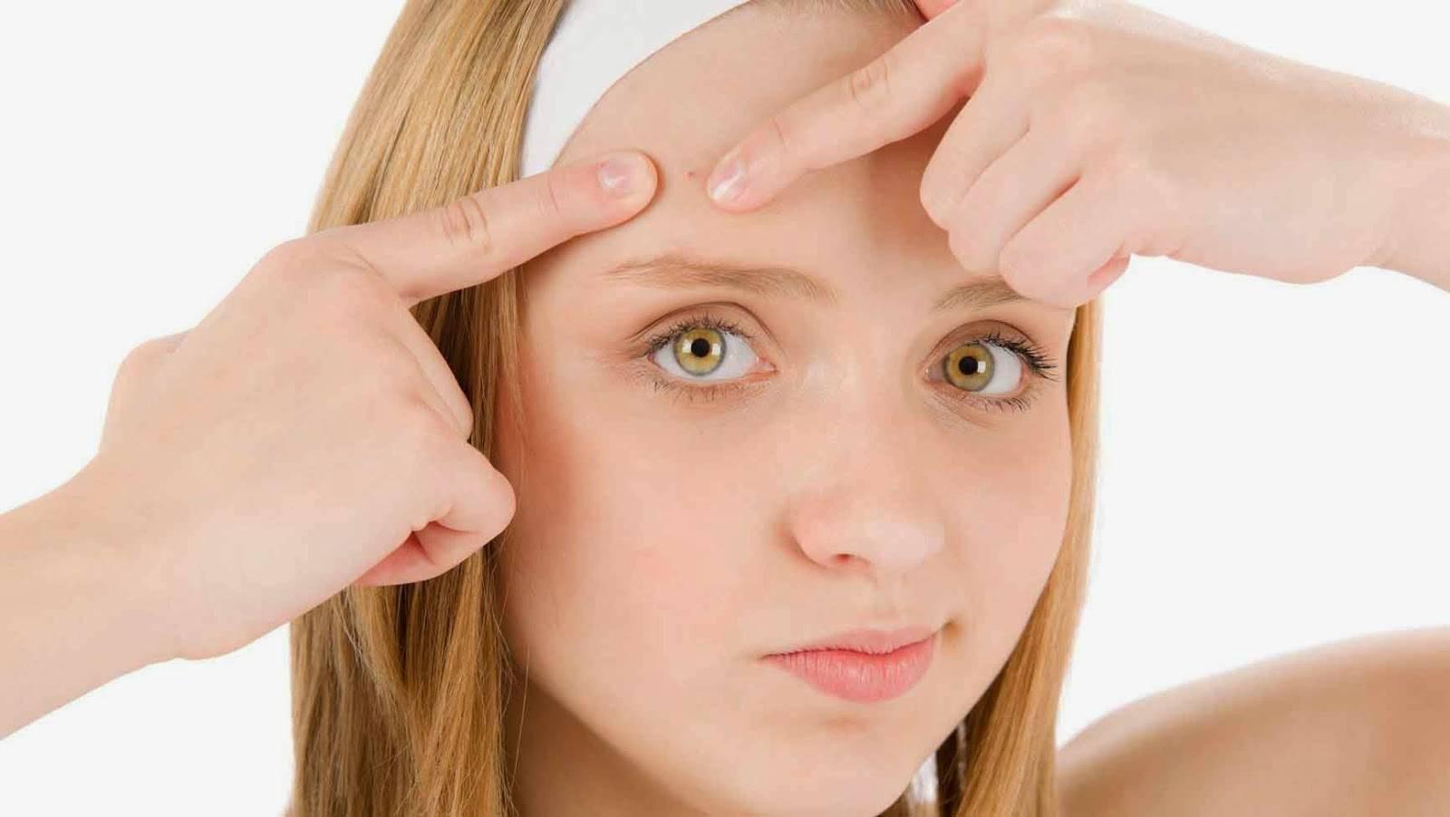 Прыщи на лице: за какие органы отвечают и что значат
