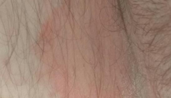 Почему возникают красные пятна в паху у мужчин и женщин? ищем причину и устраняем проблему