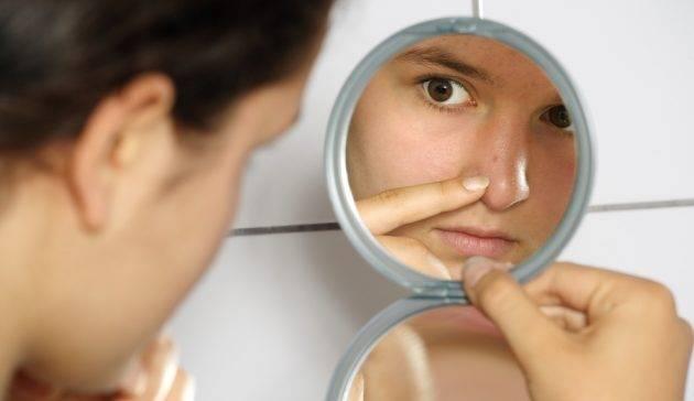 Как удалить черные точки на лице в домашних условиях