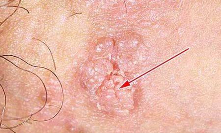 7 причин папиллом в зоне гениталий — как и с помощью чего избавиться?