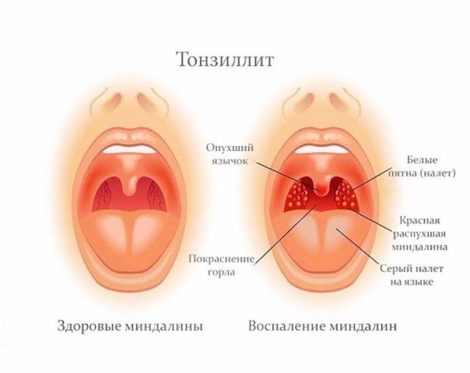Хламидийный фарингит: симптомы и лечение бактериального фарингита