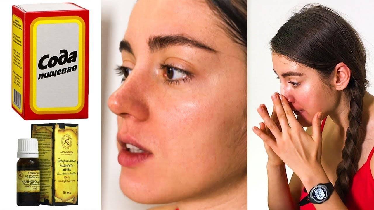 Применение соды в домашних косметических процедурах
