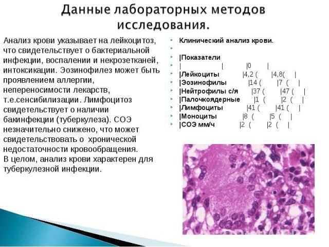 Общий анализ крови, расшифровка, норма, в таблице