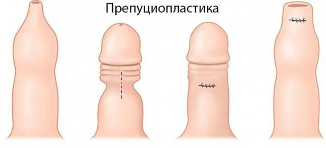 Операция по обрезанию крайней плоти у мужчин, до и после неё