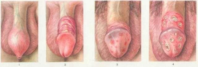 Симптомы гонореи у женщин. диагностика, лечение, осложнения