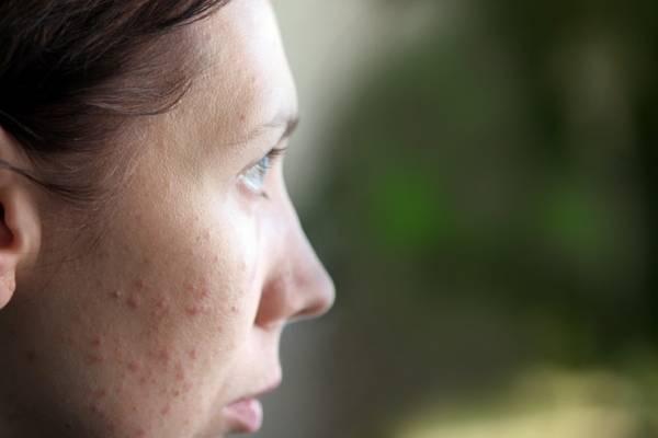 Аллергические прыщи на лице: причины и лечение