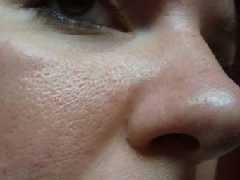 Жирная кожа на лбу: что делать?