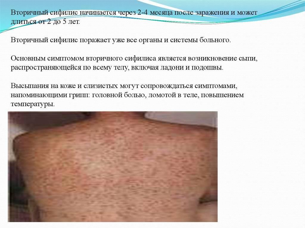 Первичный сифилис: инкубационный период и проявления, лечение