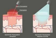 Лечение остроконечных кондилом во влагалище и внутри матки