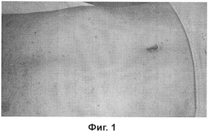Бактериальный фарингит: возбудители, причины, симптомы, лечение