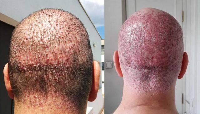 Фолликулит или гнойное воспаление волосяного фолликула — симптомы и лечение