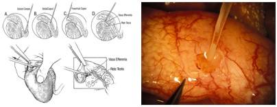 Опасно ли проводить биопсию яичка у мужчин