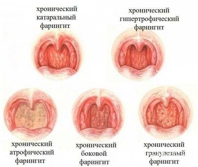 Причины, симптомы и лечение фарингита