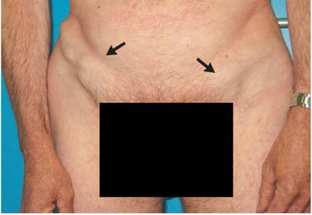 Увеличение лимфоузлов при вич (лимфаденопатия)