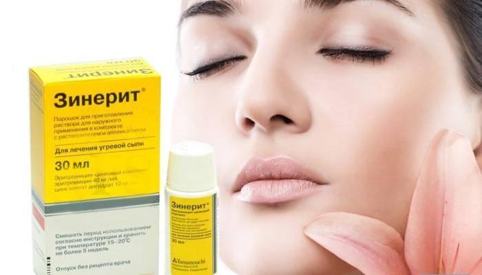 Как избавиться от акне на лице: разбираемся, какими препаратами лечить разные виды угревой болезни