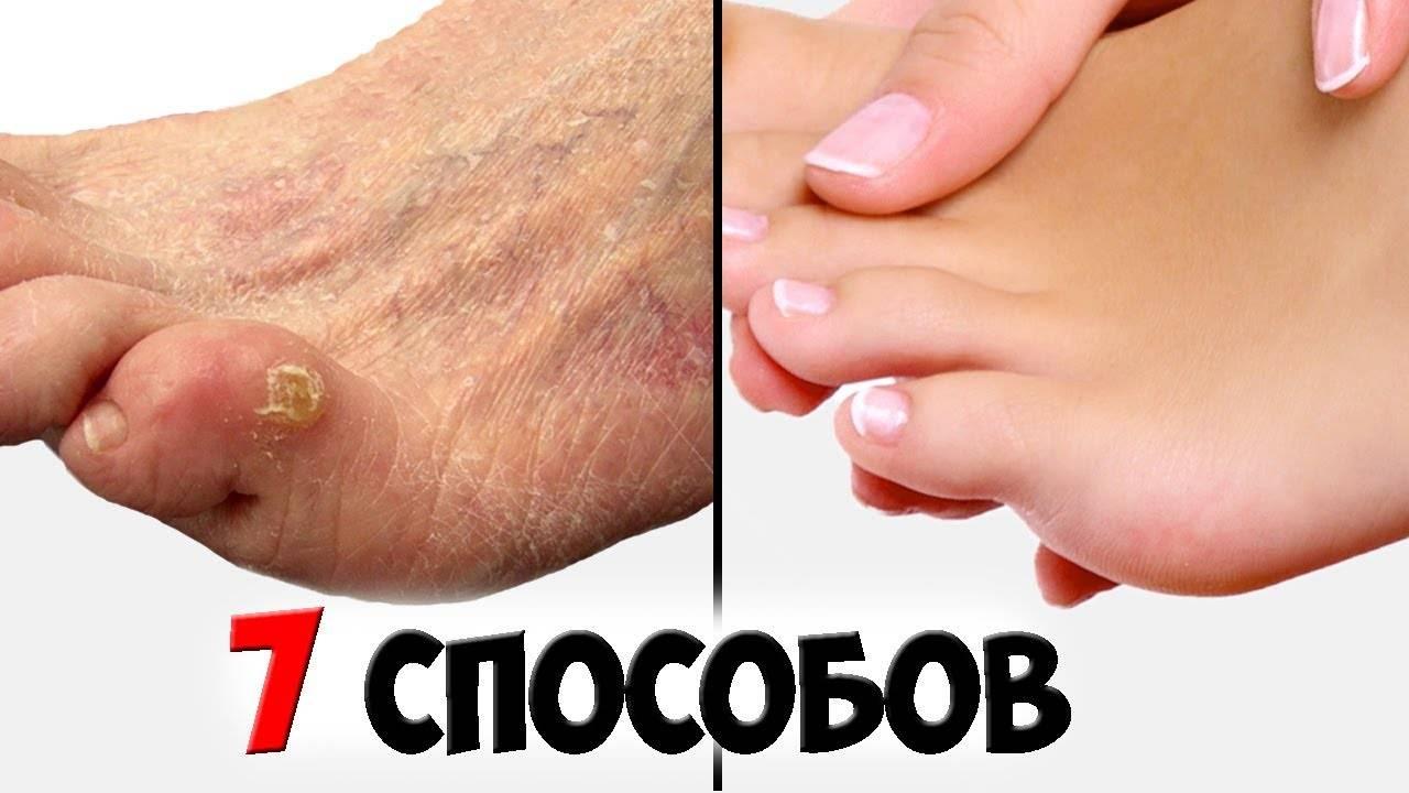 Мозоли на пальцах ног: лечение, удаление народными средствами, мазями, чистотелом, в домашних условиях, виды мозолей
