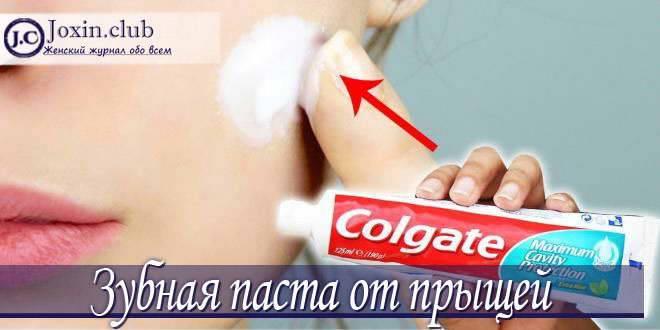 Правда ли, что зубная паста помогает от прыщей на лице?