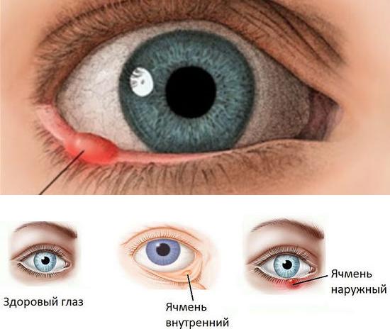 Как эффективно лечить ячмень на глазу в домашних условиях