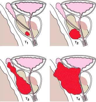 Рак предстательной железы 2 степени: как дать отпор заболеванию