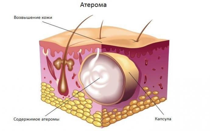 Атерома мошонки: симптомы и современные методы лечения