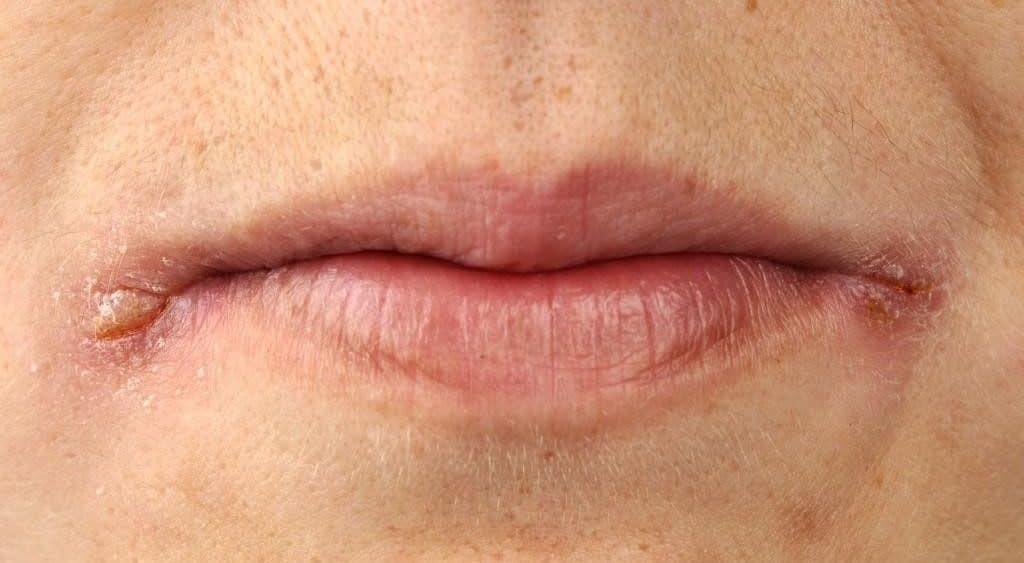 Заеды в уголках рта – фото, причины и лечение