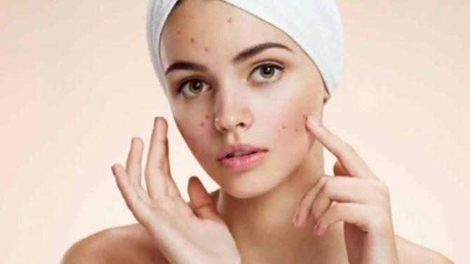 Ужасные прыщи на лице! советы косметологов, как быстро и эффективно избавиться от прыщей