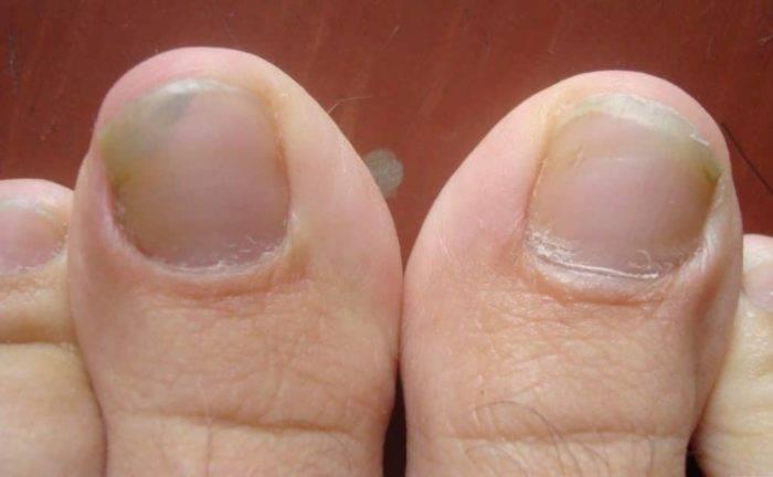Грибок ногтей на руках — признаки и симптомы + фото, методы лечения