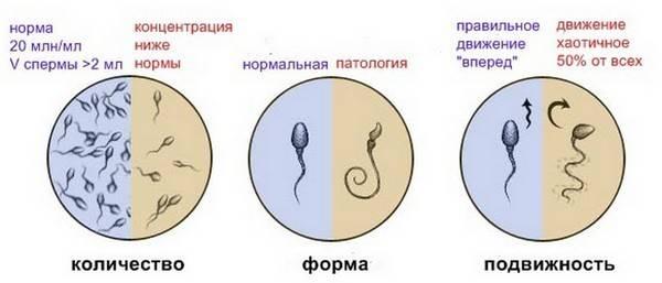 Спермограмма через можно сдавать после антибиотиков