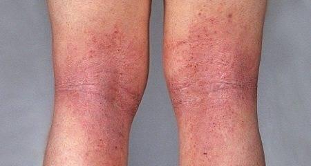 Красные пятна в паху у мужчин: фото, причины, лечение