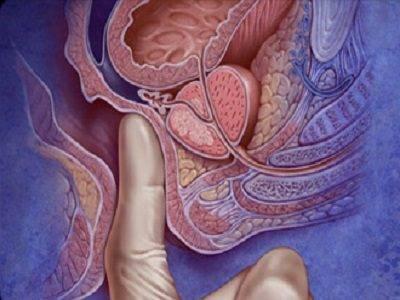 Простата: где находится, какую функцию выполняет, анатомия