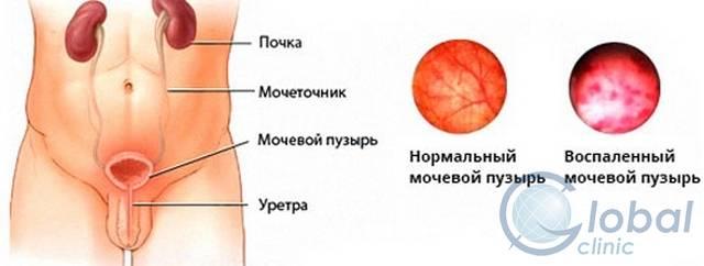 Воспаление мочевыводящих путей у мужчин симптомы лечение