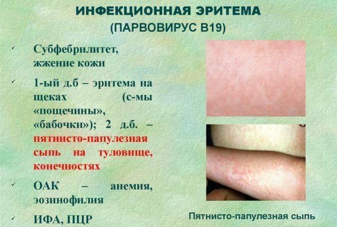 Бленнорея глаз. бленнорея взрослых: фото, симптомы, возбудители болезни, варианты лечения. симптомы, вызывающие опасения