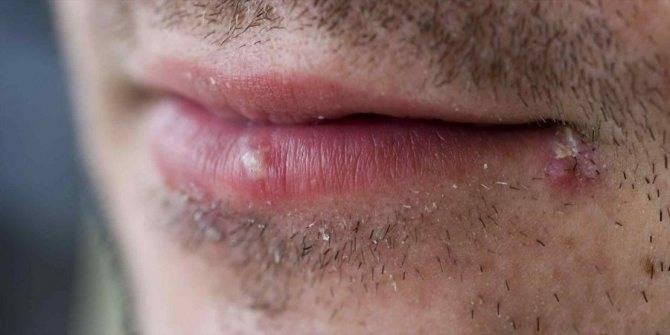 Заеды в уголках рта: причины появления и лечение