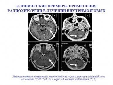 Меланома с метастазами в мозг