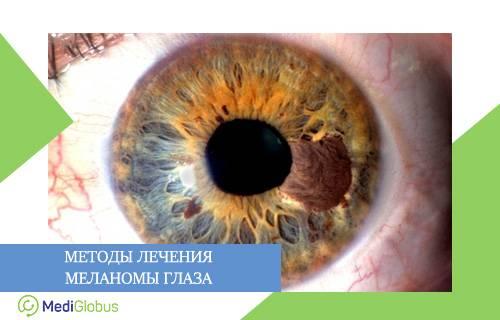 Меланома глаза: диагностика, лечение, стадии