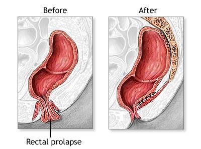 Плоскоклеточная папиллома: причины возникновения, осложнения
