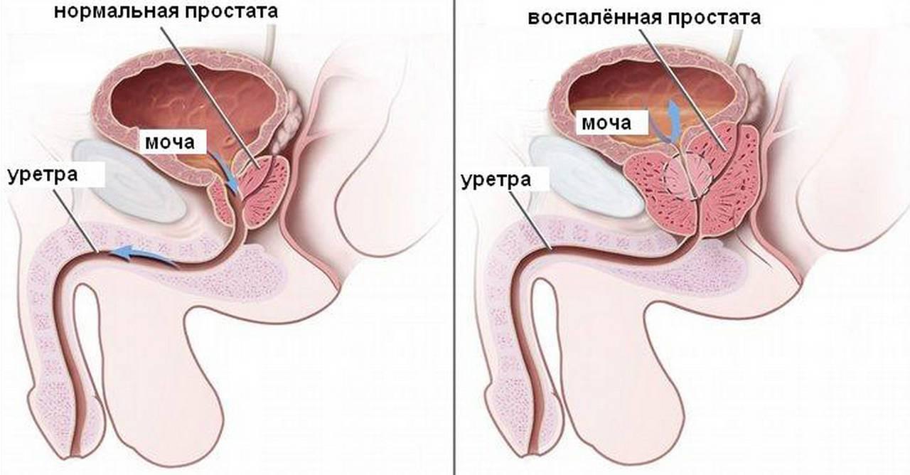 Простатит у мужчин: причины, симптомы, лечение и профилактика