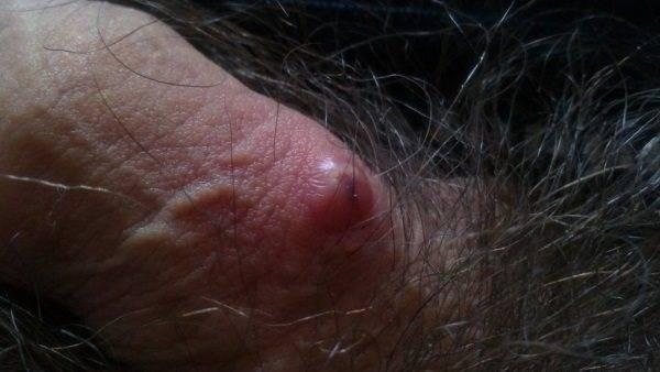 Уплотнение в виде шарика на лобке — фото, причины, лечение