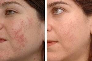 Моча при прыщах на лице: способ применения и рекомендации