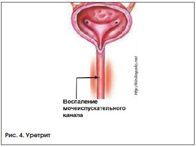 Основные симптомы и принципы лечения воспалений органов мочеполовой системы