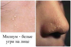 Мелкие прыщи на лице – причины и способы лечения