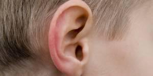 Черные точки на мочках ушей